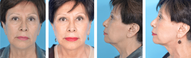 facelift before and after from Chicago Plastic Surgery LLC